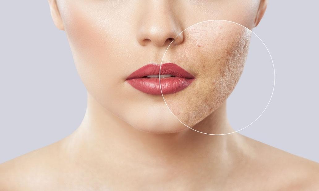 Skin Rejuvenation, Acne removal